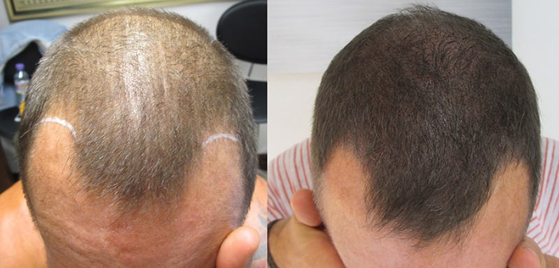 Scalp Micropigmentation for thin hair