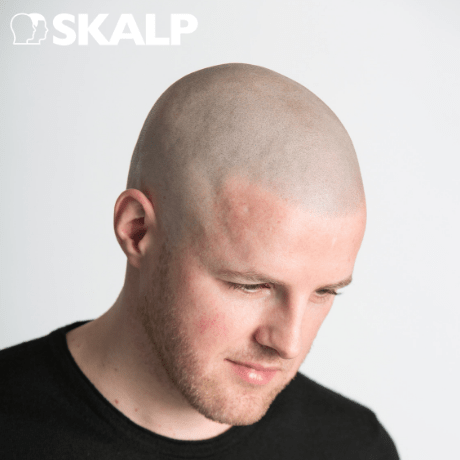 scalp micropigmentation for hair hair