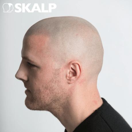 scalp micropigmentation on pale skin