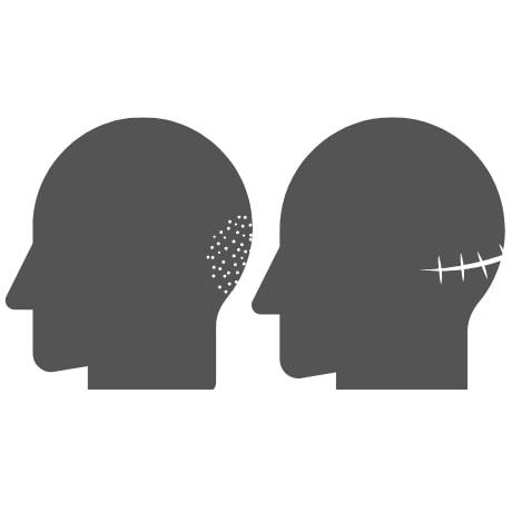 FUE & FUT Hair transplant scar