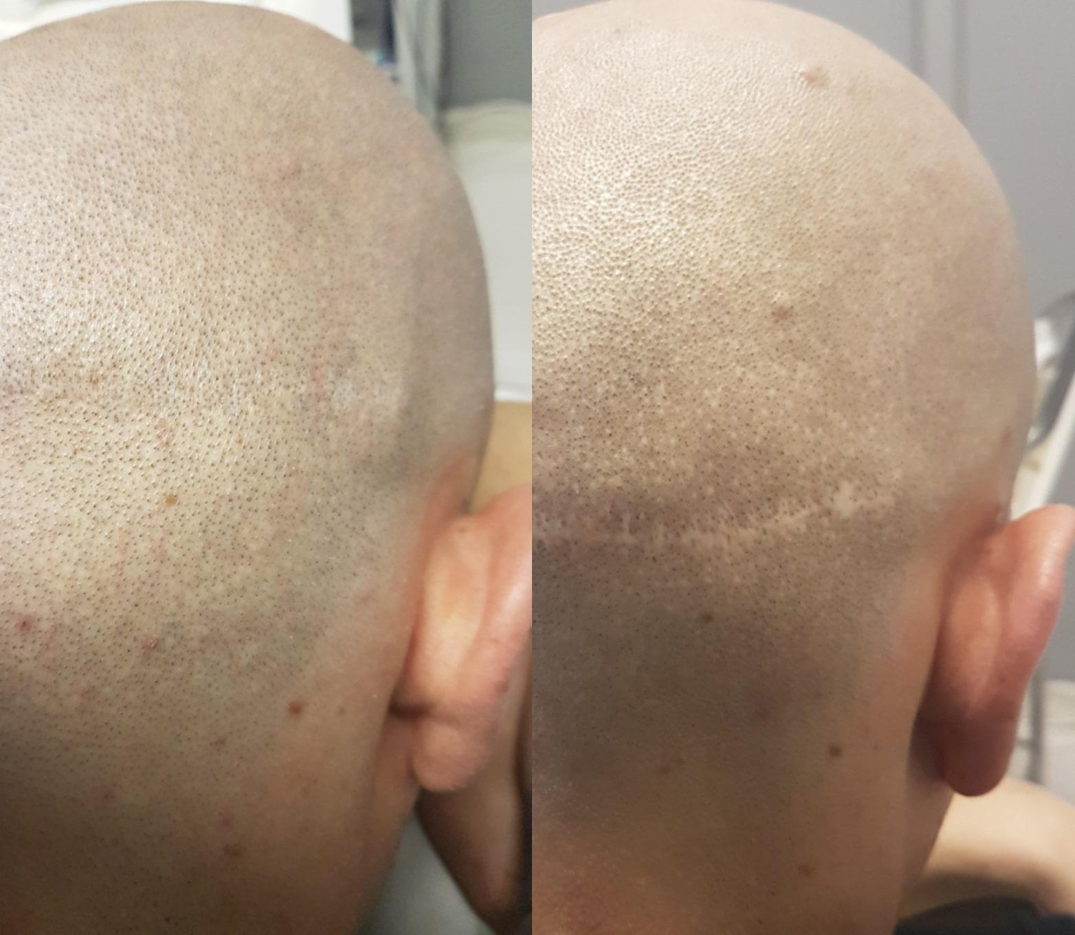 HT Scars Scalp Micropigmentation can fix