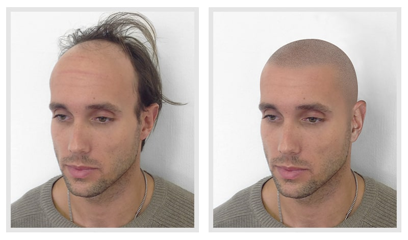 Virtual Scalp Micropigmentation Hairline Mock-up