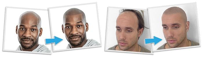 scalp micropigmentation Consultation