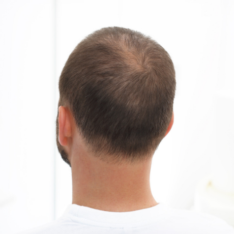 Soy un buen candidato para un trasplante de pelo