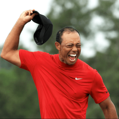 Tiger Woods Hair Loss 2019