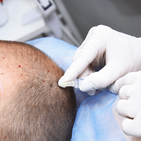 prp treatment in process for hair growth