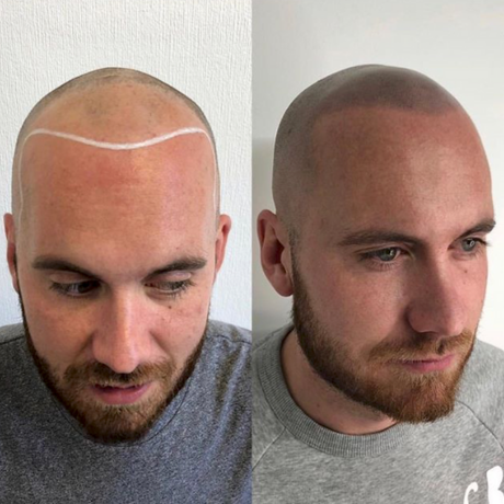 does Scalp Micropigmentation look real?