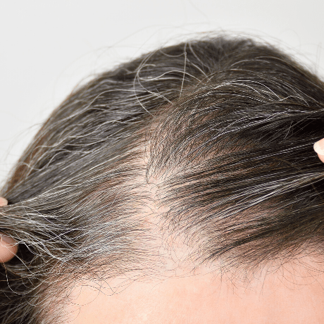 mens hair turns grey