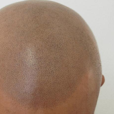 scalp micropigmentation close up