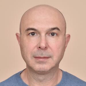 bald hair line mock-up