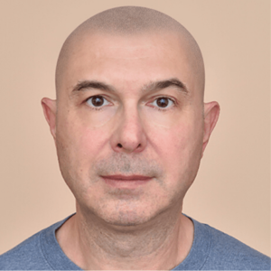 scalp Micropigmentation mock-up
